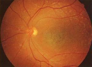 Leber遗传性视神经病变
