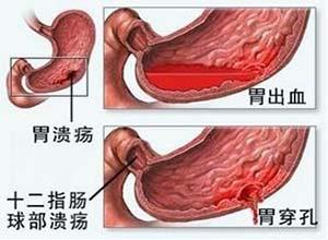 胃溃疡性穿孔