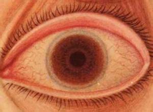 巨乳头性结膜炎