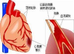 老年人糖尿病性心脏病