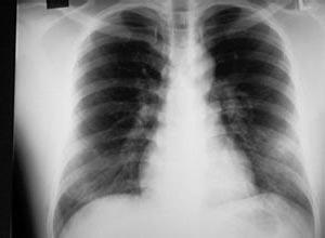 小儿肺水肿