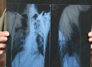 滑石粉尘肺
