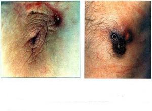 非哺乳期乳晕部瘘管