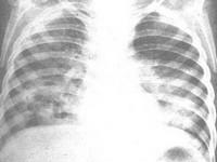 间质性肺炎