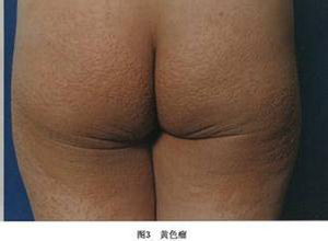 高脂蛋白血症