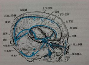 大脑大静脉瘤