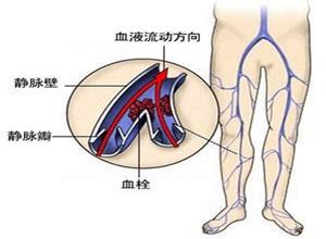 下肢深静脉血栓形成