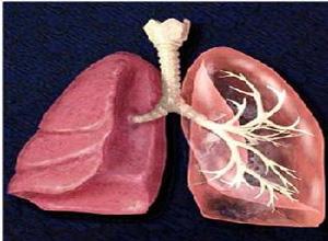热带型肺嗜酸性粒细胞肺炎