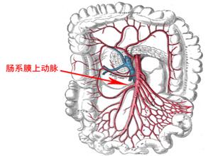 肠系膜上动脉栓塞