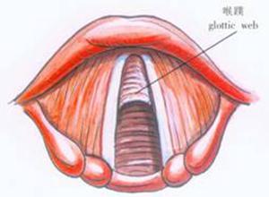 先天性喉蹼