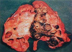 膀胱�Y石
