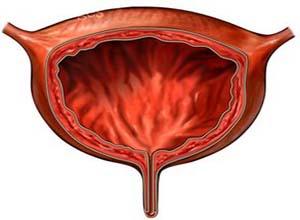 膀胱输尿管反流