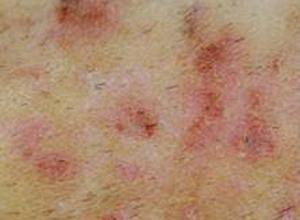 慢性乳头状溃疡性脓皮病