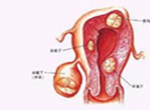 子宫平滑肌肉瘤