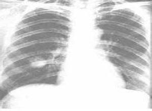 肺假性淋巴瘤