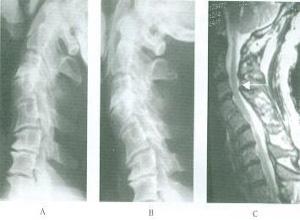 下颈椎不稳症