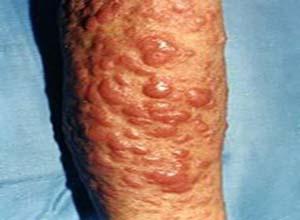 皮肤T细胞淋巴样增生