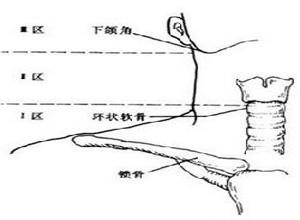颈部火器性异物