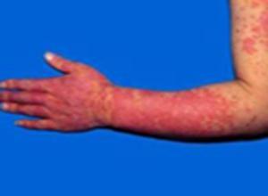 增殖性皮炎