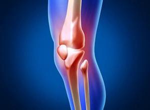 什么是骨質增生