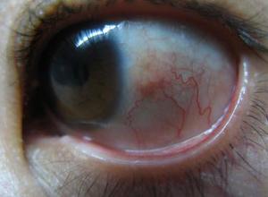 干燥性角结膜炎