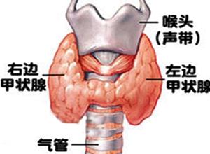 甲状腺功能减退伴发的精神障碍