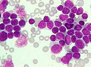 急性白血病