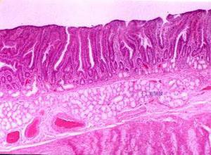 结肠血管畸形