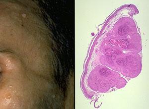 涎腺混合瘤
