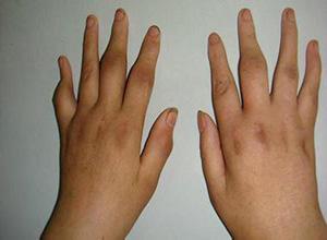 幼年型类风湿性关节炎