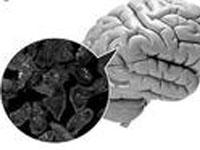 真菌性脑膜炎