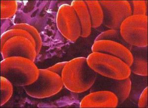 相对性红细胞增多症