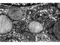 妊娠合并获得性免疫缺陷综合征