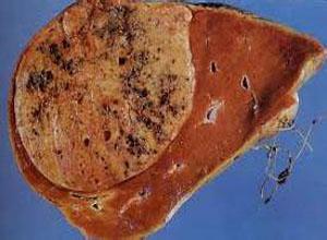 老年人原发性肝癌