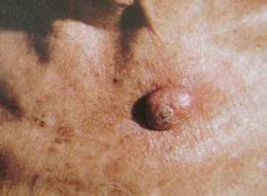 角化棘皮瘤