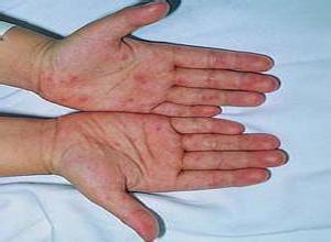 肠道病毒71型感染
