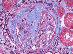 局灶性节段性肾小球硬化