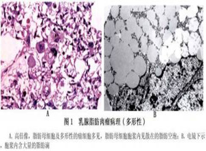 乳腺脂肪肉瘤
