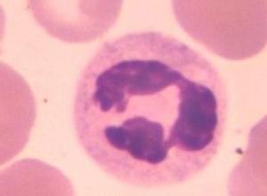 特发性胃肠道嗜酸性细胞浸润综合征