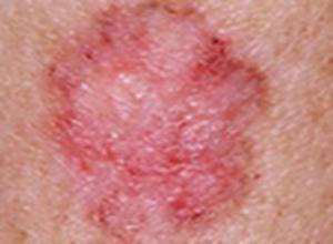 职业性皮肤癌