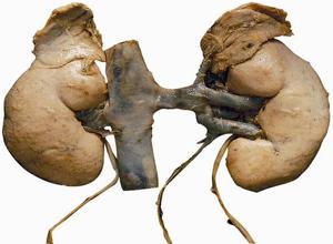 双侧先天性肾上腺皮质增生