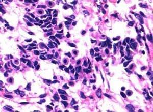 卵巢两性母细胞瘤