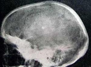 颅骨纤维异常增生症