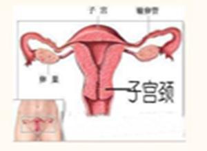 间质膀胱炎局限外阴炎和脱屑性阴道炎综合征