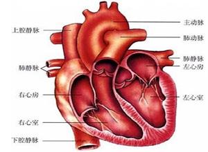 限制型心脏病