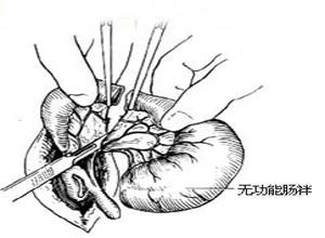 先天性肠闭锁与狭窄