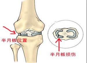 膝关节半月板损伤