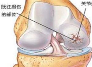 创伤性肘关节炎