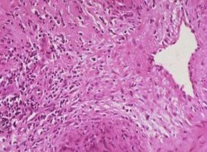 巨细胞动脉炎