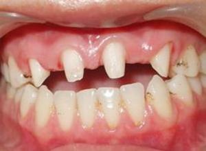 单纯性牙周炎